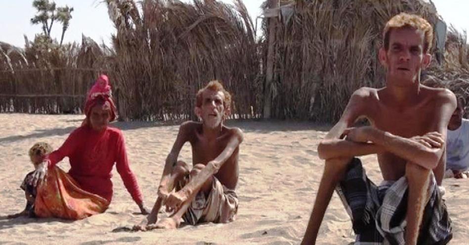 الأمم المتحدة: إنعدام الأمن الغذائي في اليمن أسوأ مجاعة من صنع الإنسان شهدها العالم