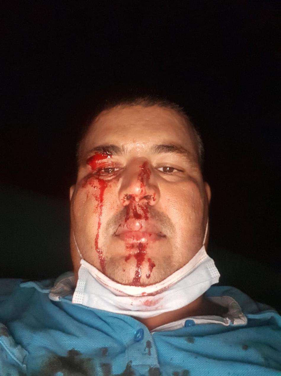 """بالصور والفيديو.. بلطجية واعتداءات في حملات انتخابية دون حسيب أو رقيب بـ""""أفورار""""!!!"""